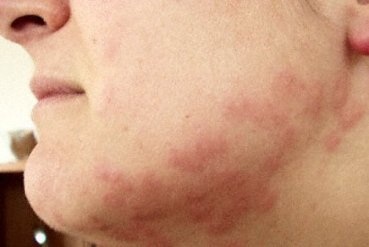 bedbug-bites-on-face